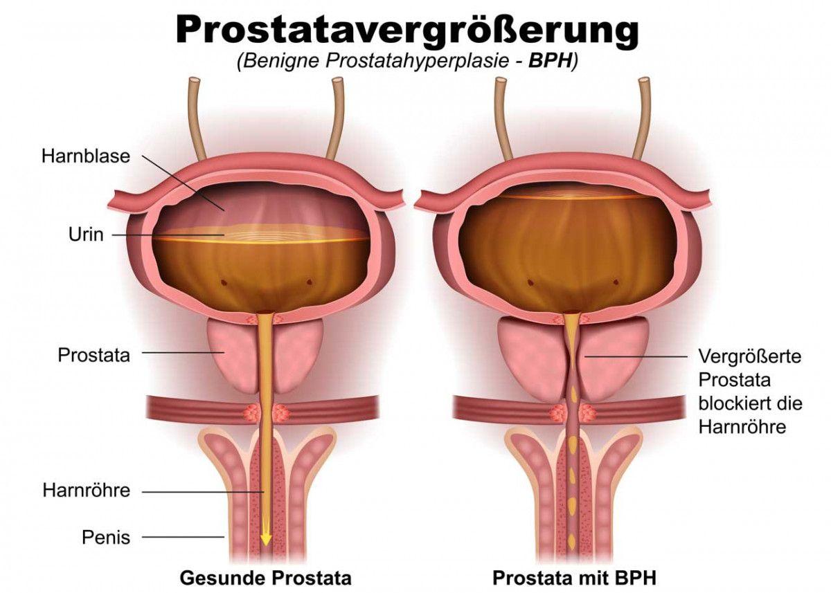 Prostatavergrößerung – Was macht der Urologe?   Urologie   Pinterest ...