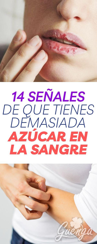Rmag27 14 Señales De Que Tienes Demasiada Azucar Alto Niveles De Glucosa En La Sangre Health Trends Health Motivation Health And Wellness