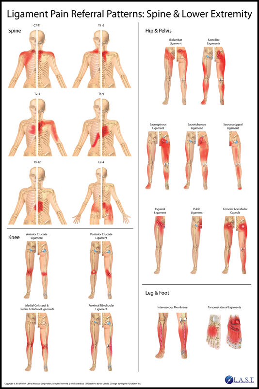 Ligament Pain Referral Patterns Ligament Pain Referral Patterns Amazing Pain Referral Patterns