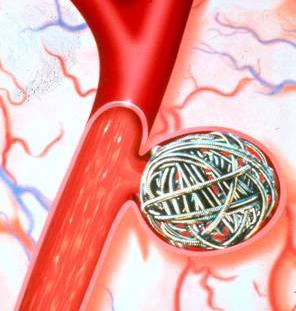 Pin On مرض تمدد الاوعية الدموية فى الدماغ