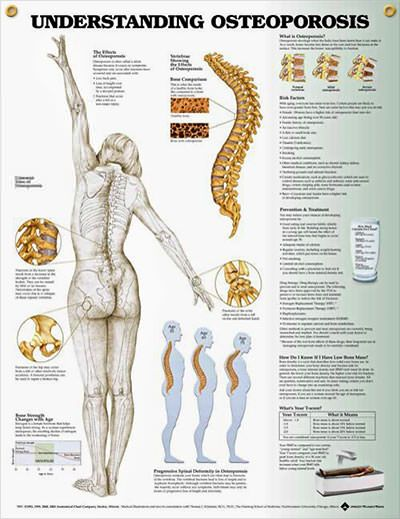 15++ How to tell if i have osteoporosis viral