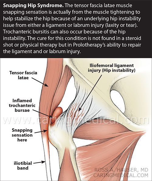 snapping hip syndrome treatment info pinterest hip pain and exercises