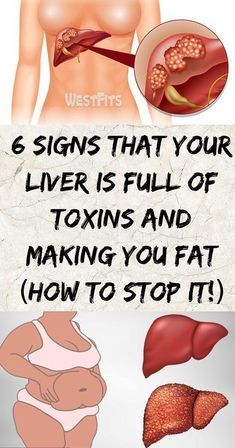 Six Signs That Your Liver Is Full Of Toxins And Ma