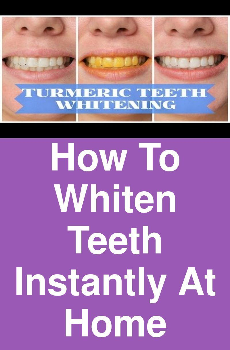 How To Whiten Teeth Instantly At Home Beauty Tips Whitening