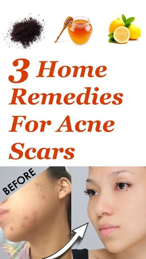 3 Home Remedies For Acne Scars