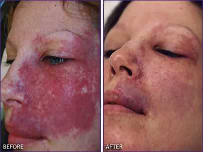 Before And After Facial Laser Therapy Birth Marks Port