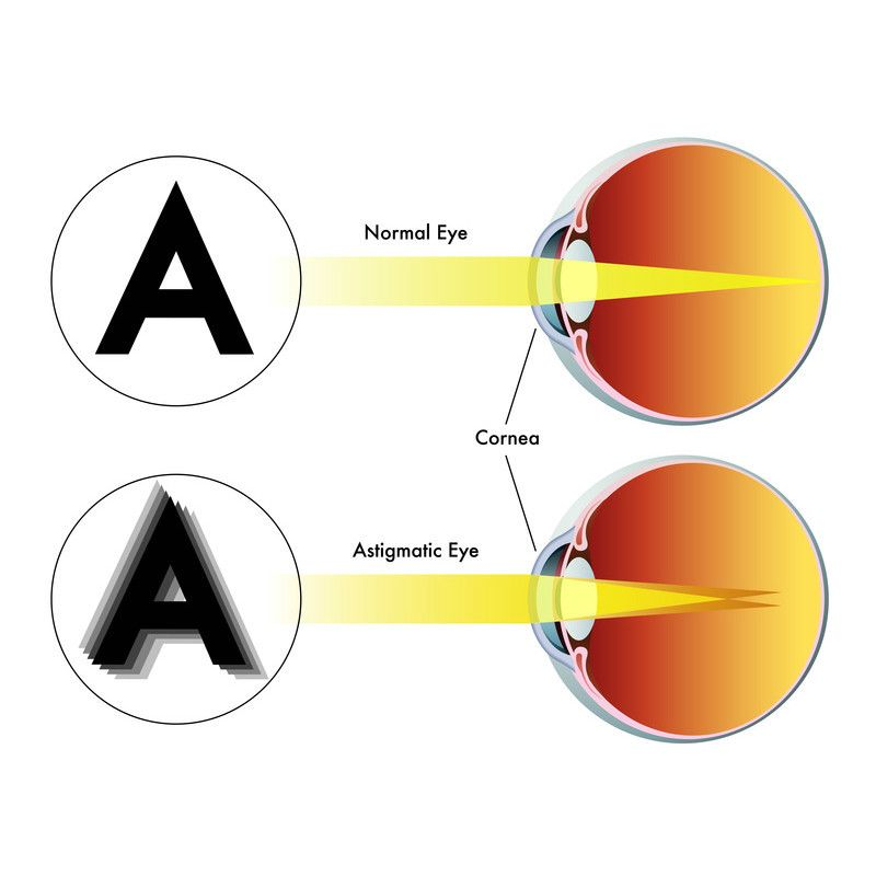 Toronto North York Eye Care Specialist We Make The Perfect