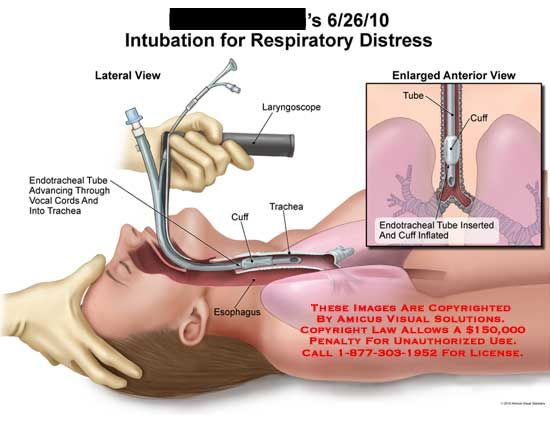 amicus illustration of amicus medical respiratory intubation