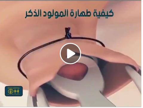 علاج حصوات الكلى بالاعشاب الطبيعية علاج رمل الكلى مجرب علاج الحصى في Holding Hands Hands