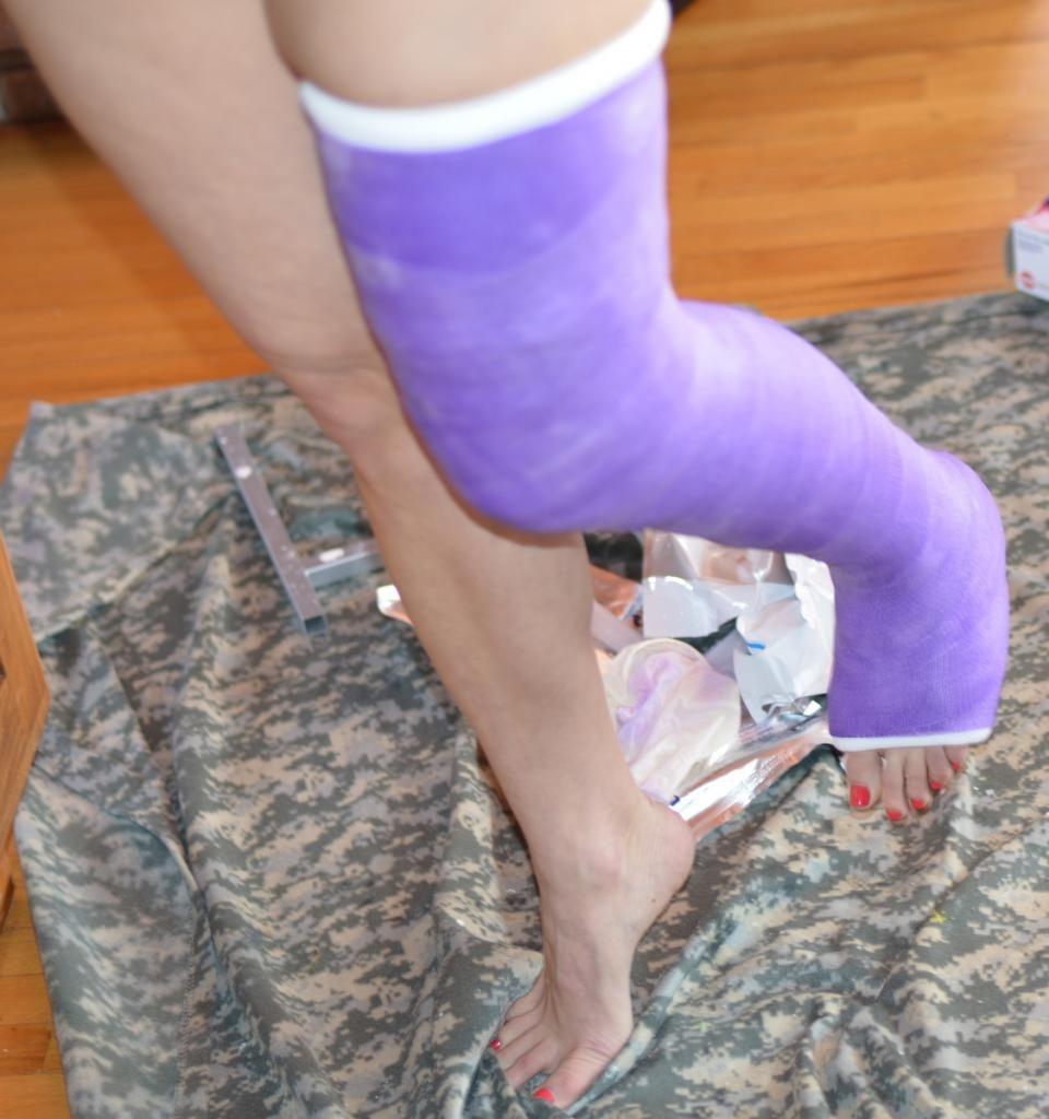 Long Leg Cast, Leg Cast, It Cast