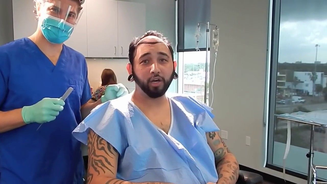 Hair transplant near miami fl hair doctor near me https