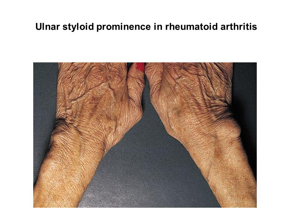 Image result for ulnar styloid process sticking out rheumatoid ...