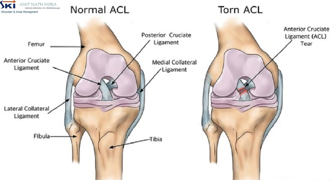 The commonest injuries amongst Badminton Players are Rotator Cuff ...