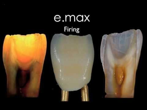 5 Tips For Processing Zirconia Dental Ceramics Dental Aesthetic Dentistry