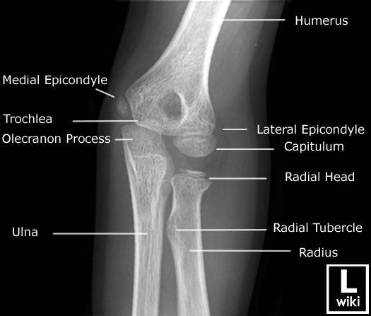 Radiographic Anatomy - Paediatric Elbow - Oblique ...