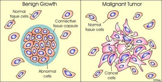 benign vs malignant cells | Nursing: Cancer | Cancer facts, Cancer