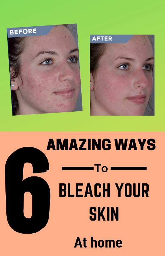How To Bleach Your Skin Naturally At Home Face Masks Bleaching