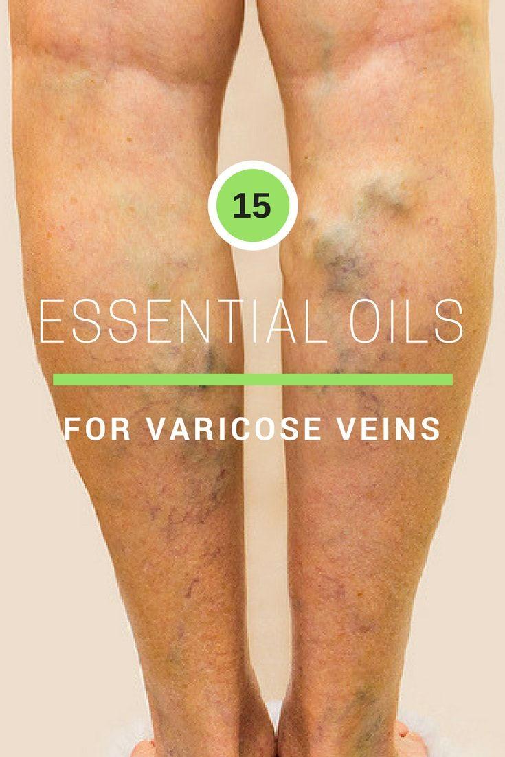 15 Essential Oils For Varicose Veins In 2020 (Shri