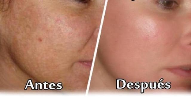crema casera para eliminar manchas de acne