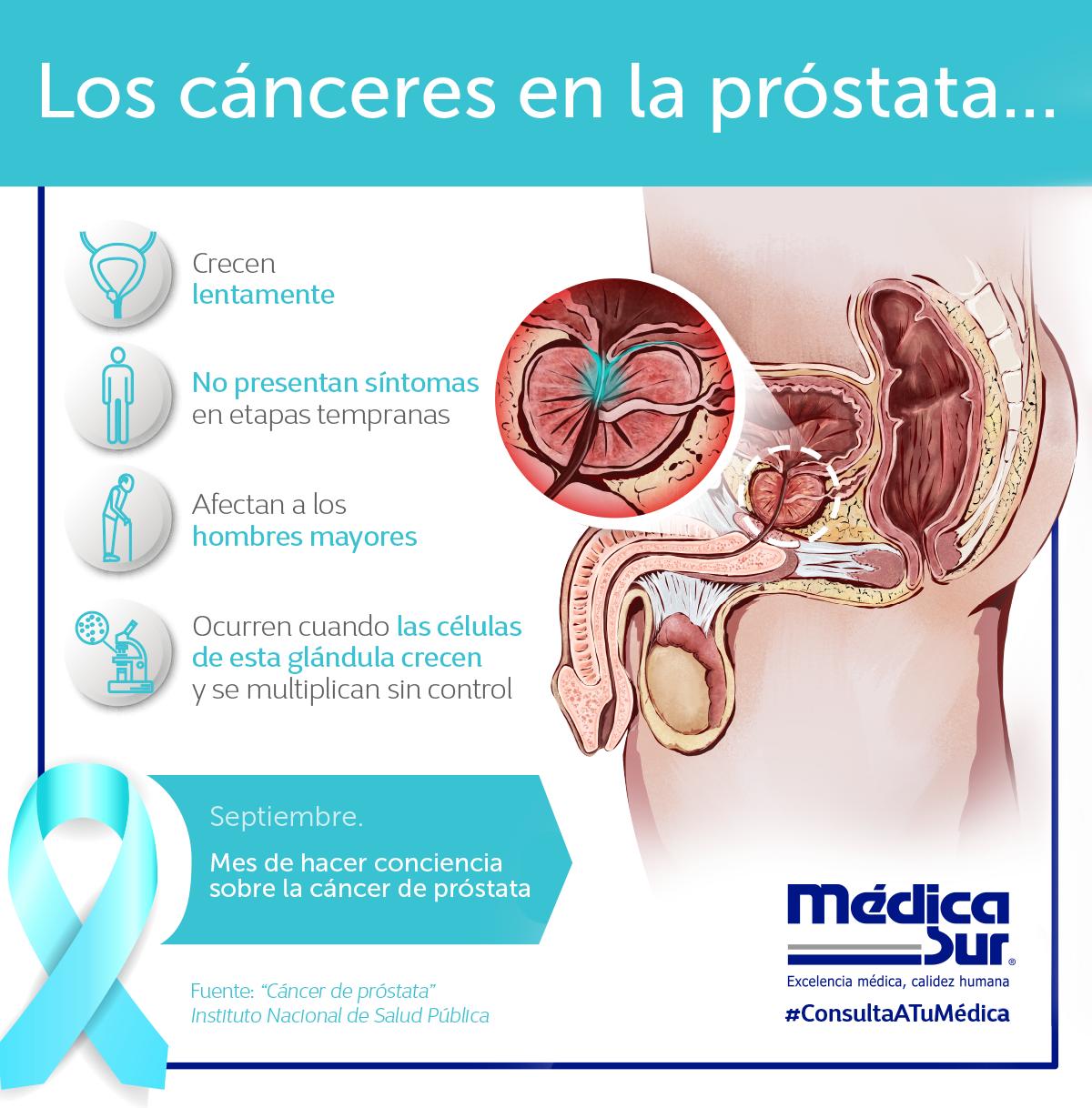 que produce cancer en la prostata