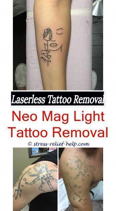 low cost tattoo removal how much is it to get a tattoo ...