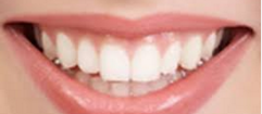 Arti mimpi gigi copot lengkap untuk anda. silahakn simak ulasan lengkap tentgang arti gigi copot