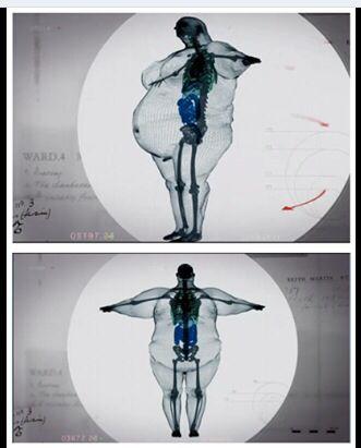 Stimerex es weight loss