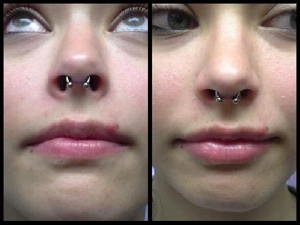 Septum Piercing With A 16 Gauge Titanium Circular Barbell From