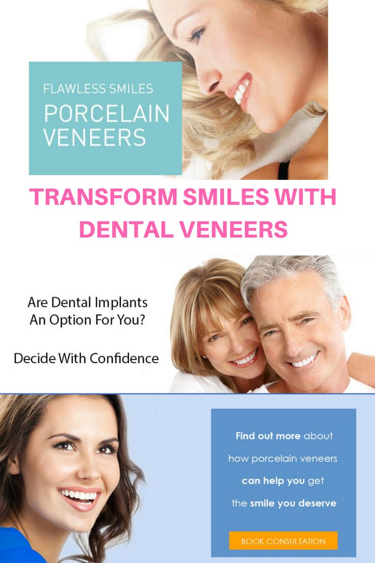 Dental veneers are thin layers of stainresistant