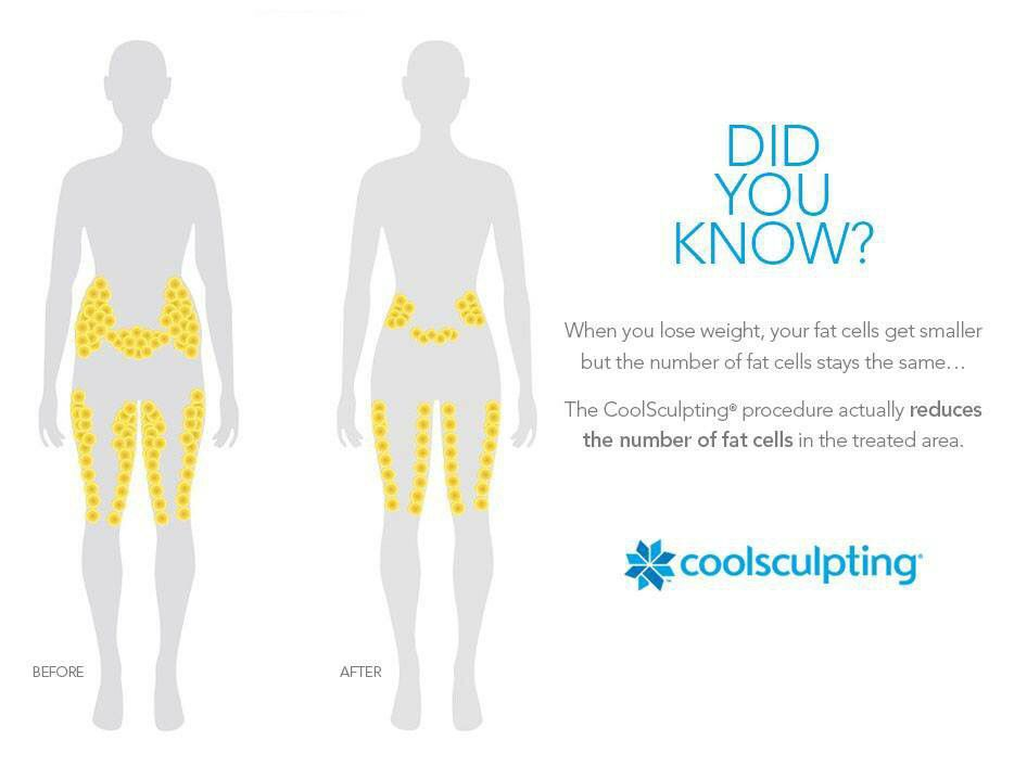 Coolsculpting target areas | Cool sculpting, How to slim ...