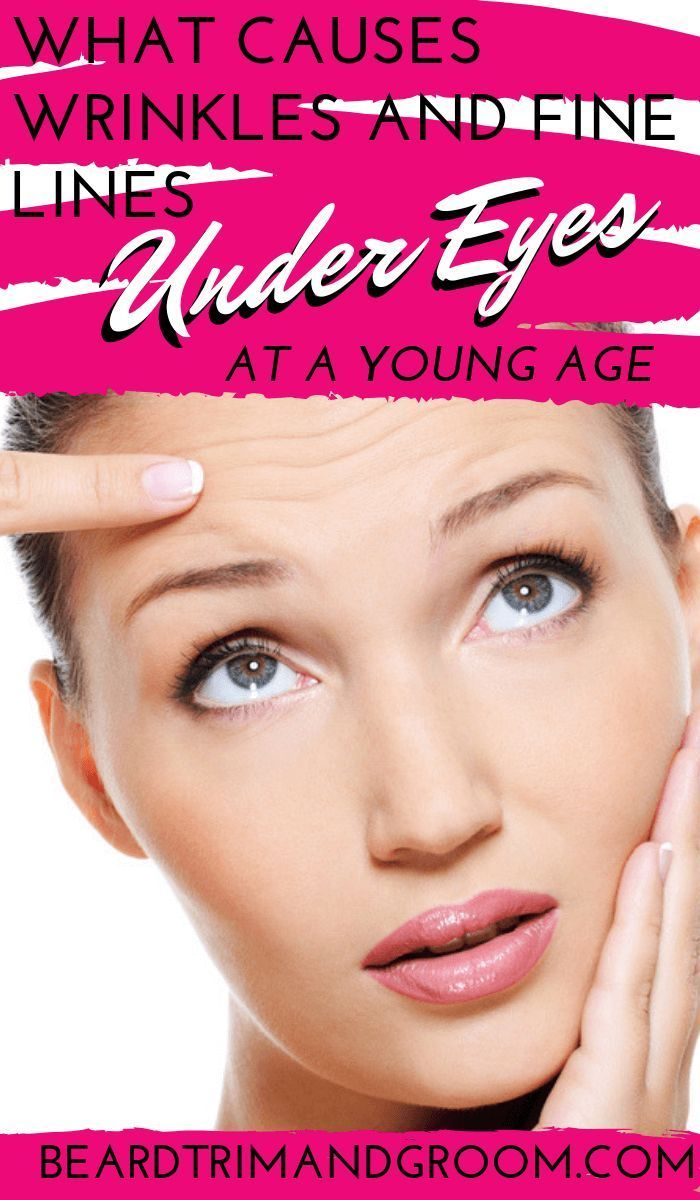 What Causes Wrinkles And Fine Lines Under Eyes At A Young