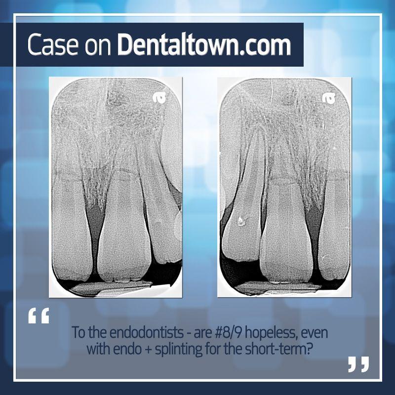 Dentaltown case 10 y.o. deep apical horizontal fractures