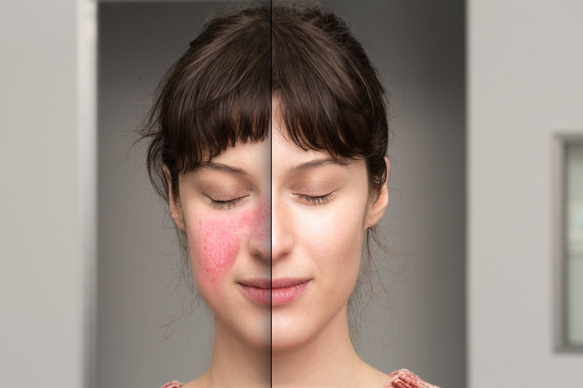 How To Cover Rosacea with Makeup Without Making it Worse