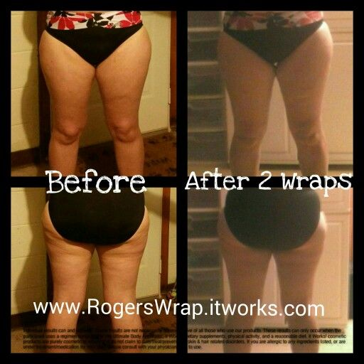 My personal thigh wrap results