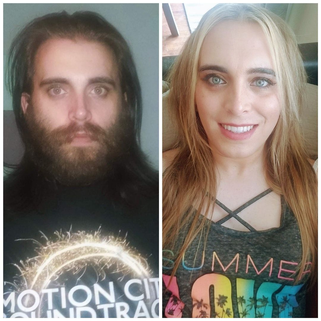 May 2016 vs june 2018. 30 years old, 5 months hormones, 5