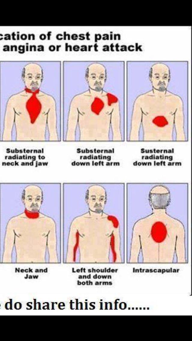 Location Of Heart Attack Hints Tips Pinterest Heart Attack