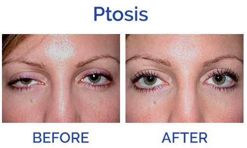 Image result for ptosis