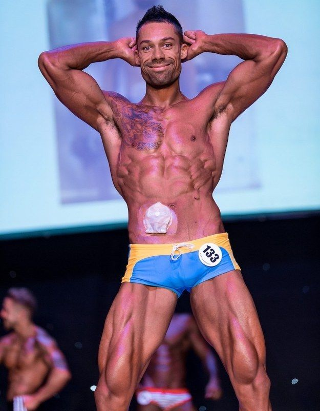 Bodybuilder Defies Doctors To Win Fitness Compeion After Being Ed With A Colostomy Bag