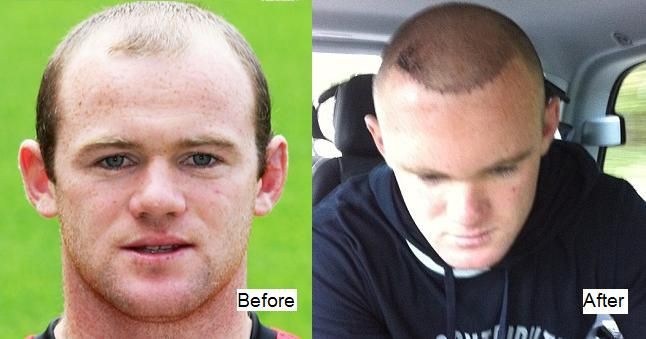 Wayne Rooney Hair Transplant Before And After Being Bald Celebrity