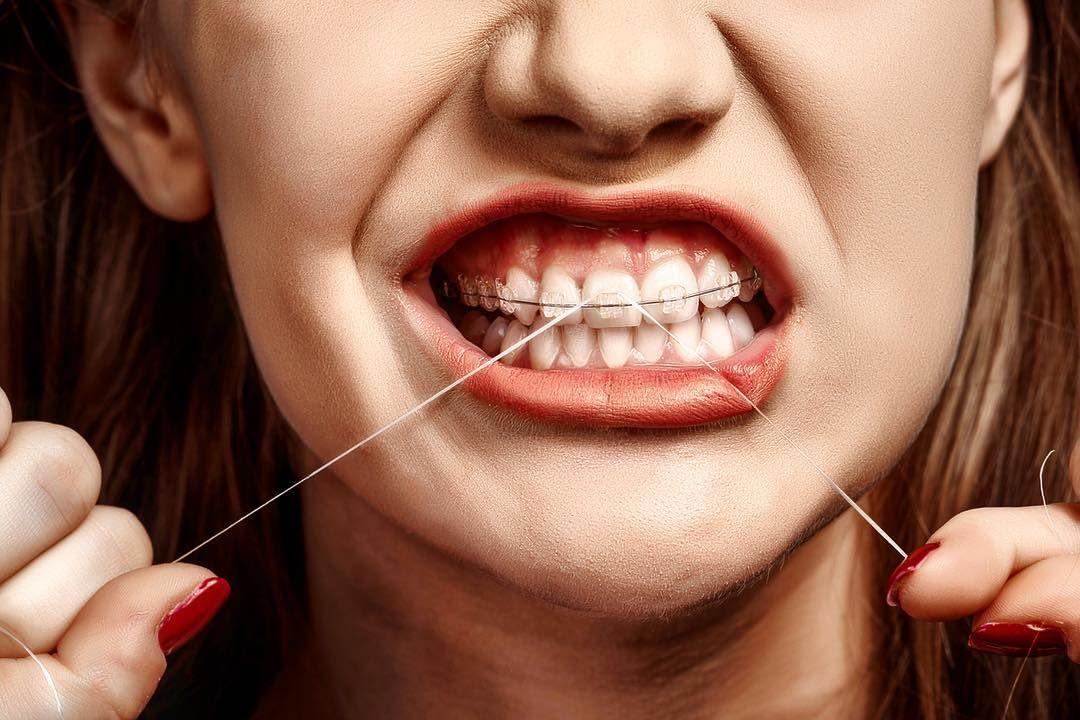 Today is National Flossing Day. And even though flossing