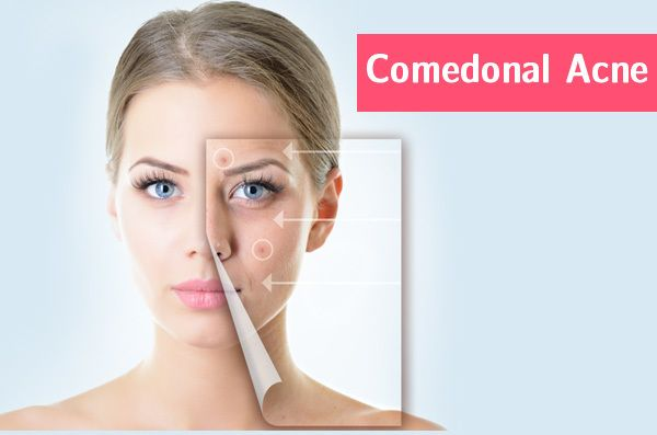 Comedonal Acne What Is It And How To Treat It Effectively Comedonal Acne Flawless Skin Remedies Acne