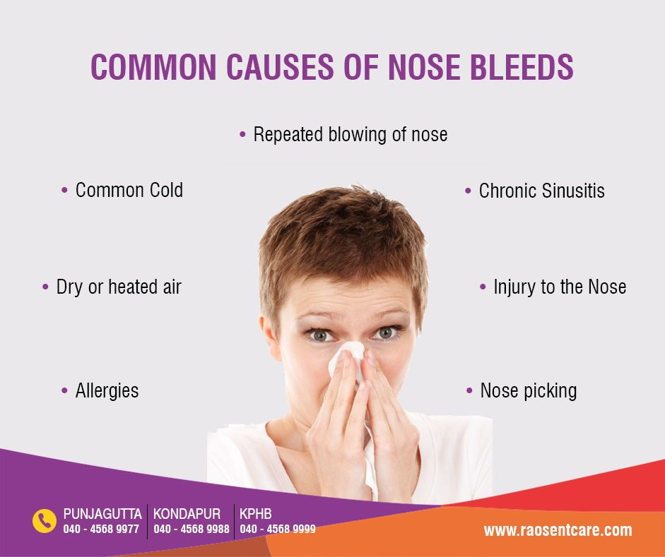 Common Causes Of Nose Bleed Https Raosentcare Com Bleeding From Nose Epistaxis Nose Bleeds Chronic Sinusitis Nose Bleeds What Causes