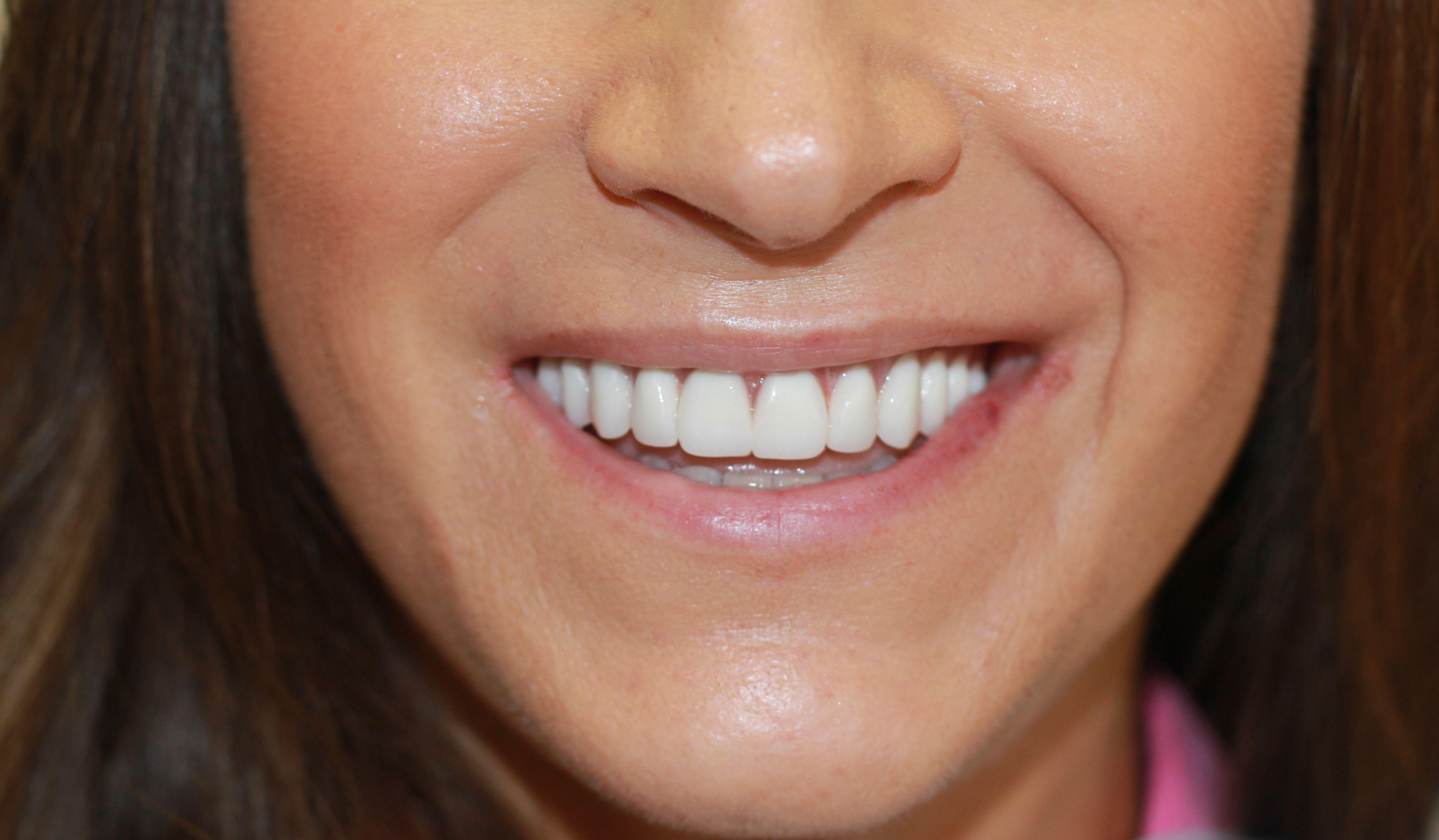 dr golpa dental implants http://golpa-dentalimplantcenter.com Dr. Golpa has been placing ...