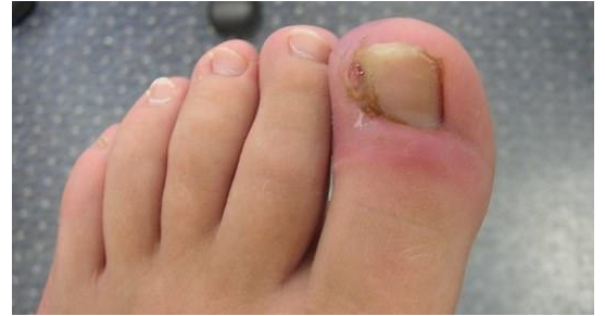 Get The Skin You Always Wanted By Following This Simple Advice In 2020 Ingrown Toe Nail Toenail Fungus Remedies