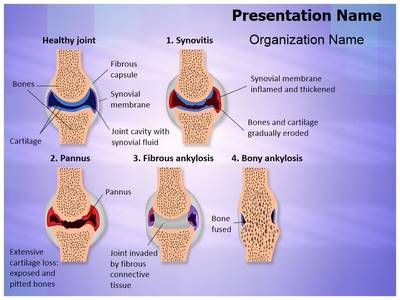Synovial rheumatoid arthritis stages powerpoint template is one of synovial rheumatoid arthritis stages powerpoint template is one of the best powerpoint templates by editabletemplates toneelgroepblik Image collections