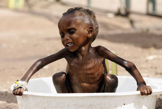 A tiny, severely malnourished African boy bathing in a bucket and clinging on to the sides in discomfort.