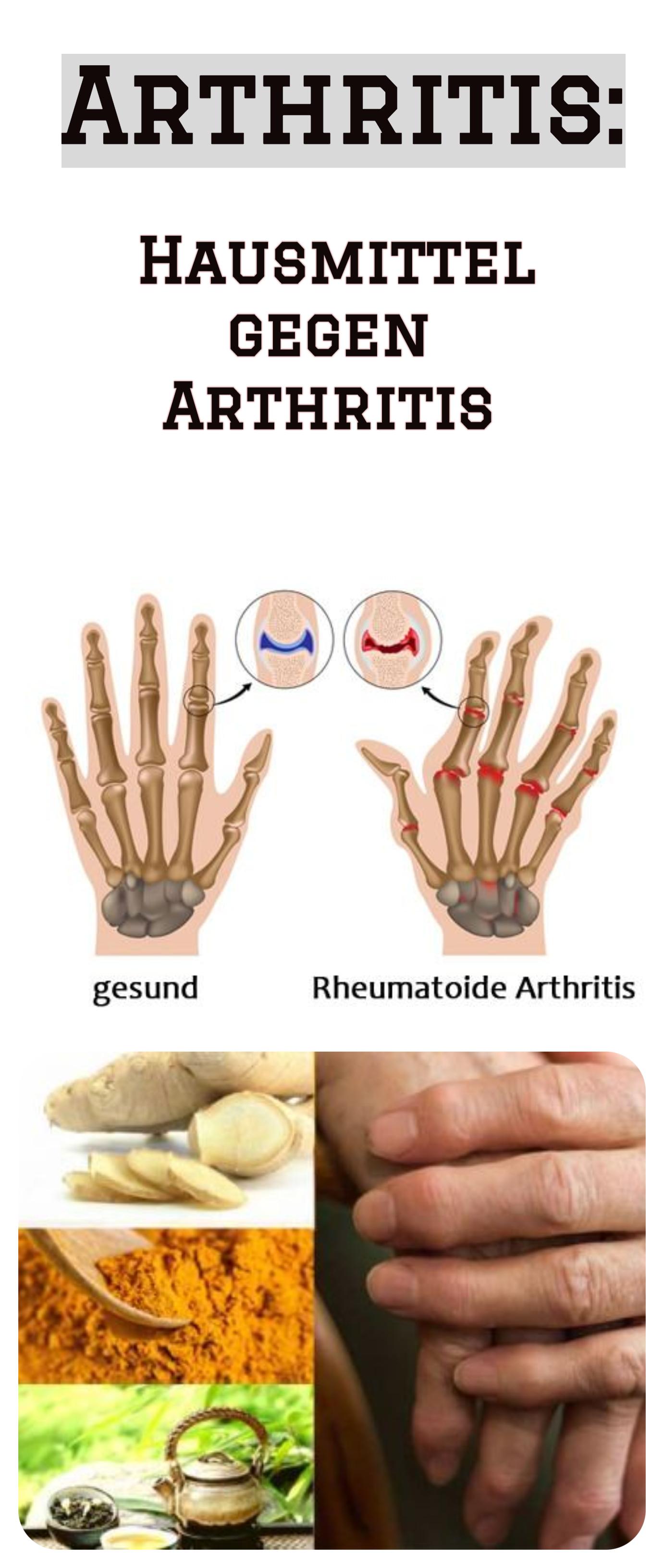 Ernährungs Docs Parodontose