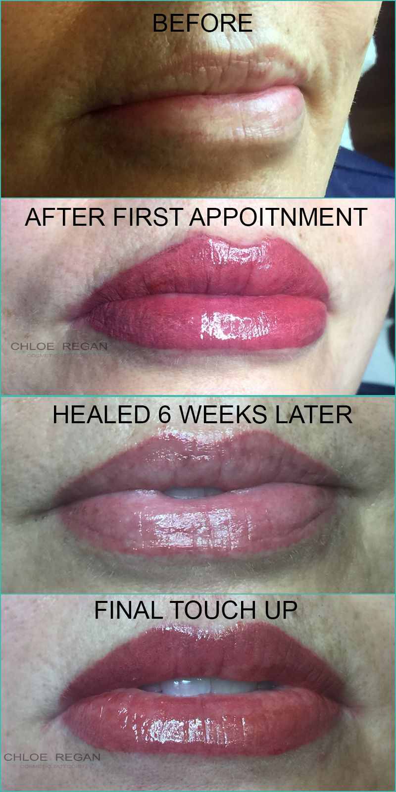 Lip Tattooing By Chloe Regan Cosmetic Tattooist Before And After