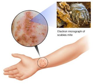 f99506c549a1bda10edee95e2a5246af - How To Get Rid Of Scabies In 24 Hours