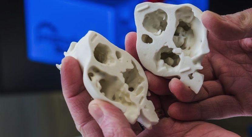 China construye su primera fábrica para creación de productos médicos por impresión 3D - http://www.hwlibre.com/china-construye-primera-fabrica-creacion-productos-medicos-impresion-3d/